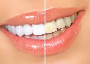 Whitening_Teeth_inv